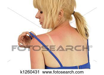 Arquivo de Fotografia - sunburn. fotosearch  - busca de fotos,  imagens e clipart