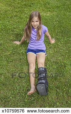 Stock Image - Preteen girl with a broken leg. Fotosearch - Search ...