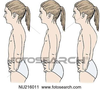 spinal deformities