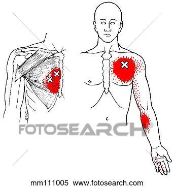 Pin deltoids pectoralis major and minor latissimus dorsi biceps