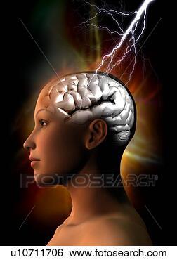 «صداع البطن».. او الشقيقة البطنية (Abdominal migraines)
