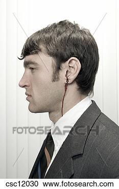 businessman-bleeding-ear_~csc12030.jpg
